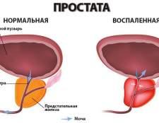 Хронічний бактеріальний простатит і його лікування
