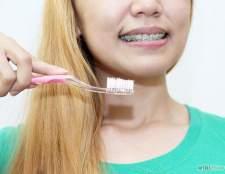 Як чистити зуби з брекетами