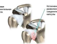 Симптоми розвитку плечового остеохондрозу